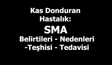 Kas Donduran Hastalık SMA